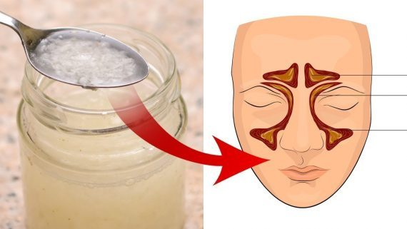 Trate infecções de sinusite e bronquite com esta receita natural