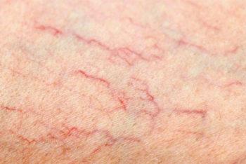 5 formas naturais de combater as varizes