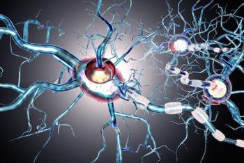 Doença de Huntington: o que é, sintomas, causa e tratamento