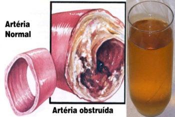 Limpe seus vasos sanguíneos com apenas um copo dessa bebida natural