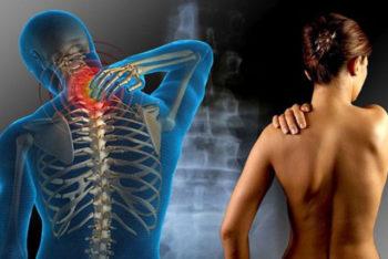 Sofre com dores musculares e fadiga frequentes? Pode ser fibromialgia