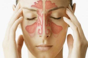Acabe com os sintomas da sinusite em poucos minutos com essa dica caseira