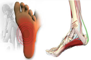 Como se livrar da fascite plantar ou dor na sola do pé de forma natural