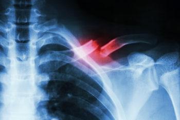 Osteogênese imperfeita: o que é, tipos, sintomas e tratamento – Tua Saúde