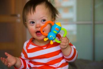 Características da síndrome de down: físicas, cognitivas e comportamentais – Tua Saúde