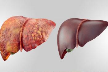 Esses 6 alimentos vão desintoxicar seu fígado de forma rápida e natural