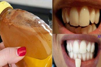 Como fazer clareamento dos dentes de forma 100% natural