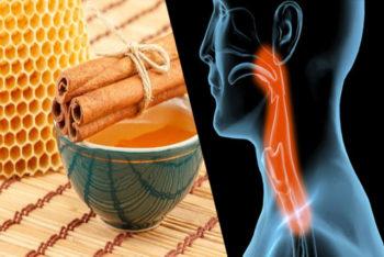 Conheça os 5 remédios caseiros para acabar com a dor de garganta