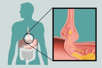9 principais sintomas de hérnia e hiato e como aliviar – Tua Saúde
